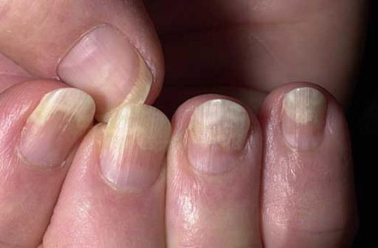 частичное отделение ногтевых пластин