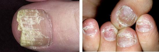 болезни ногтей онихомикоз и псориаз