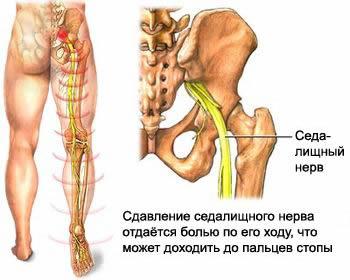 Корінцевий (компресійний) синдром