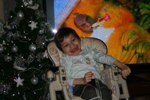 ребенок с болезнью александера