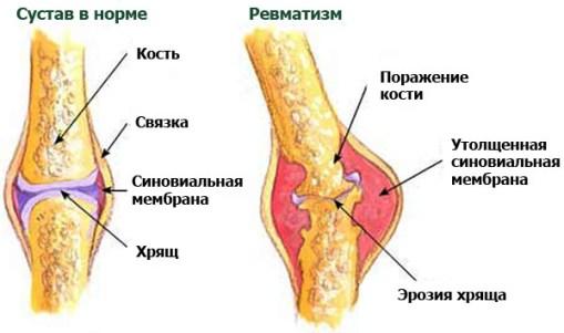 bolyat-suglobi-prichini-simptomi-lkuvannya-scho-robiti_426