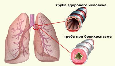 Картина заболевания