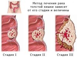 cancer_02[1]