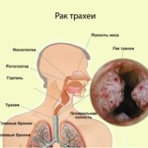 cancer_trahea1[1]