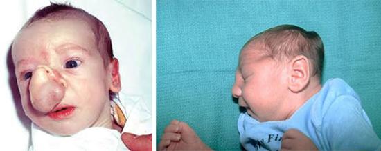 врожденные уродства и микроцефалия