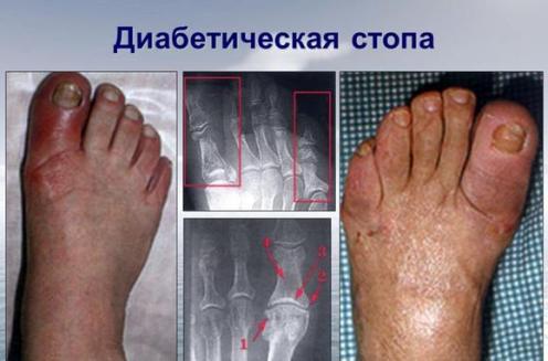 diabeticheskaja-stopa-lechenie-v-domashnih-uslovijah-1