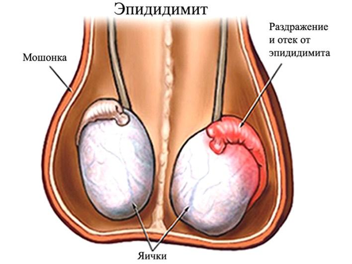 Біль у правому яєчку у чоловіків: причини