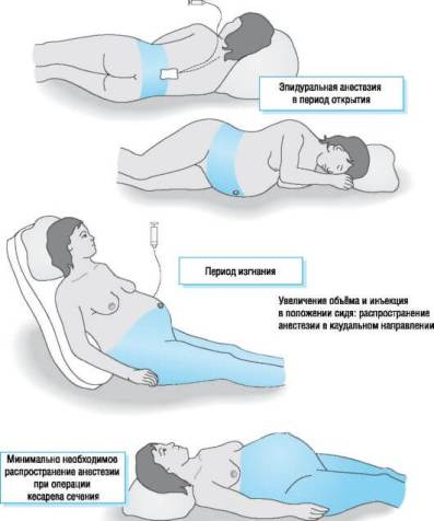 epiduralnaya-anastesiya-pri-kesarevom-sechenii