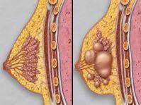 Типы доброкачественных опухолей груди