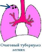 Очаговый туберкулез легких.