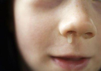 выделения из носа у ребенка при хроническом гайморите