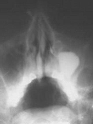 левосторонний гайморит - затемнение левой гайморовой пазухи