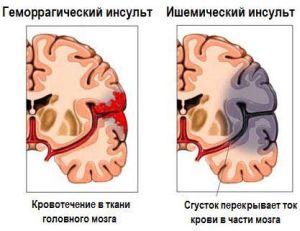 ишемический и геморрогический