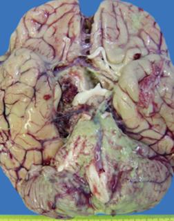 гнойный менингит