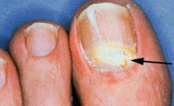 Признаки поражения ногтя