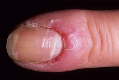 воспаление вокруг пальца (паронихия)