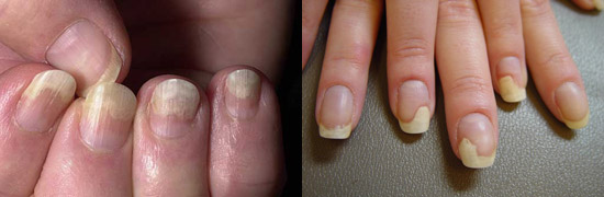 грибок ногтей на руках - онихолитический тип