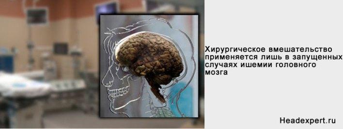 Хирургическое вмешательство — радикальный способ лечения ишемии сосудов головного мозга