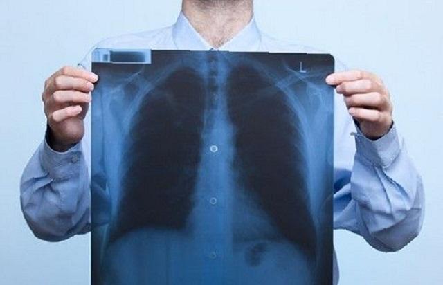 Пневмония как результат хронического бронхита