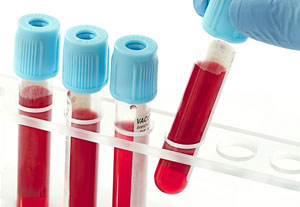 клетки лейкоциты