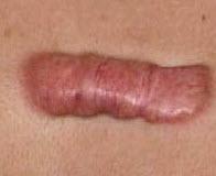 Симптомы коллоидного рубца