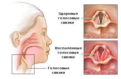 Разница между здоровыми и воспаленными связками