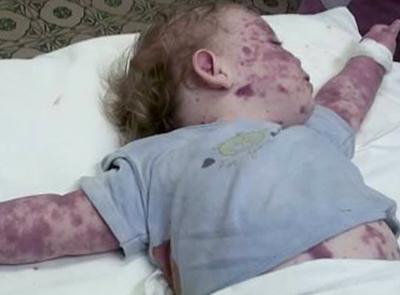менингококкемия у ребенка