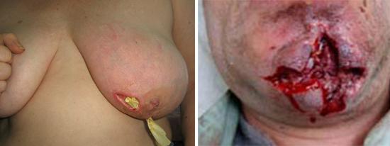 лечение стафилококковой инфекции