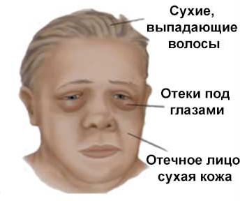 Лицо больного миксидемой
