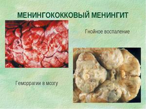 Менингококковая инфекция