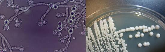 определение роста колоний гриба рода Candida