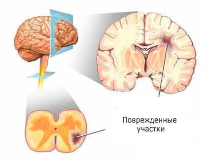 Лікування розсіяного склерозу: форми, стадії
