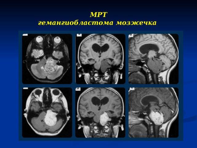 Опухоль мозжечка на МРТ
