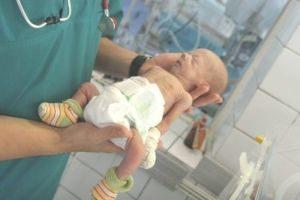недоношенный младенец