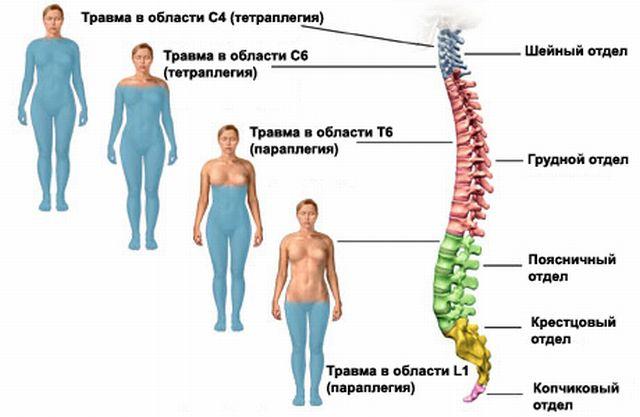 Области повреждения спинного мозга
