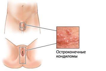 ostrokonechnie-kondilom