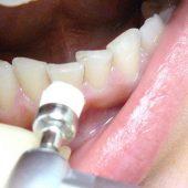 otbelivanie-zubov-1