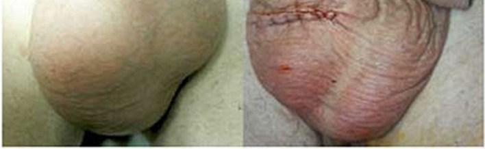 Основні причини набряку мошонки і методи лікування