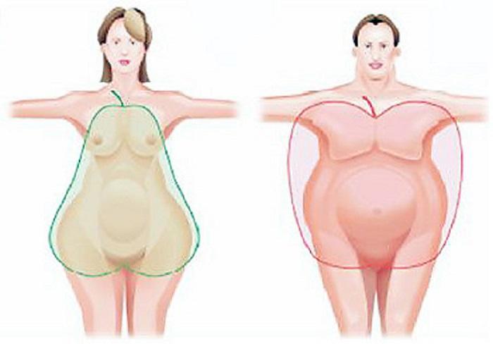 Ожиріння за жіночим типом у чоловіків і підлітків