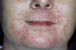 Пероральный дерматит у взрослых