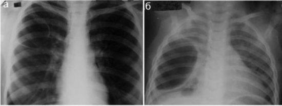 Крупные буллы, сформировавшиеся после перенесенной пневмонии (воспаления легких).