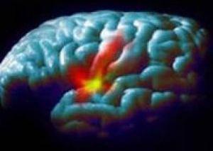 нарушения мозна ребенка