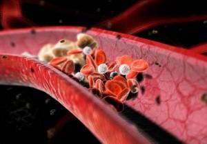 причины повышенного холестерина в крови у женщин