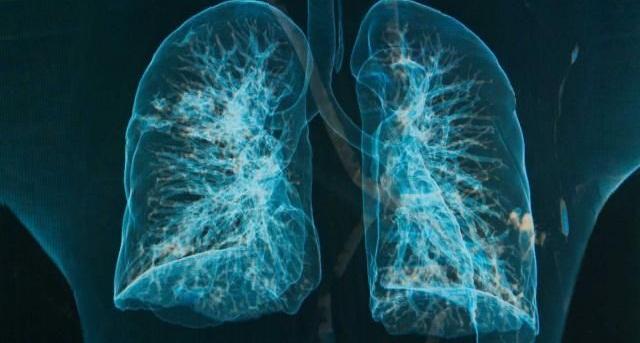 Строение легких, хронический бронхит и приступы