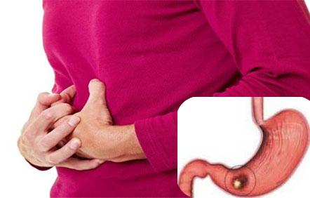 признаки рака желудка
