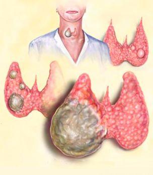 Разновидности кисты щитовидной железы