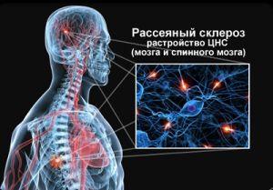 что такое склероз