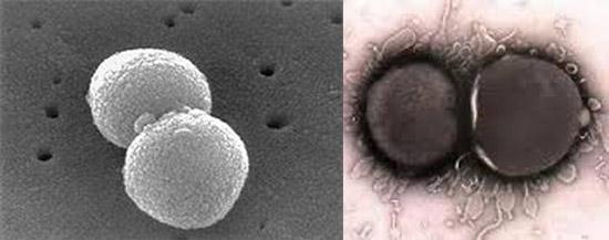 бактерии диплококки