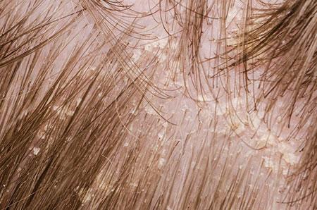 Начальная стадия себорейного дерматита на волосистой части головы, фото 3