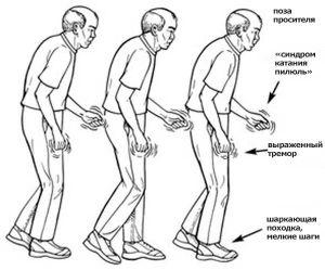Причини і симптоми хвороби Паркінсона